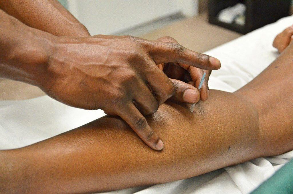 Alles over cosmetische acupunctuur